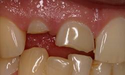 multiple-teeth-before