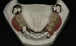 partial-denture-2
