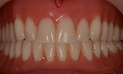 pre-treatment dentures frontal