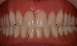 pre-treatment dentures frontal