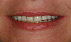 veneers-before-1