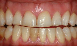 veneers-before-2